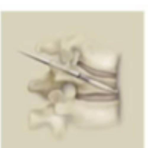fracture osteoporotique traitement 1 osteoporose fracture vertebrale centre du rachis