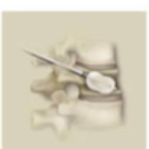fracture osteoporotique traitement 3 osteoporose fracture vertebrale centre du rachis
