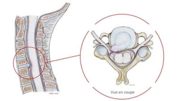 hernie discale symptome hernie discale traitement hernie discale operation nevralgie cervico brachiale duree nevralgie cervico brachiale traitement recommandations centre du rachis