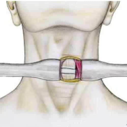 nevralgie cervico-brachiale duree nevralgie cervico brachiale traitement recommandations nevralgie cervico brachiale cancer nevralgie cervico brachiale arret de travail centre du rachis